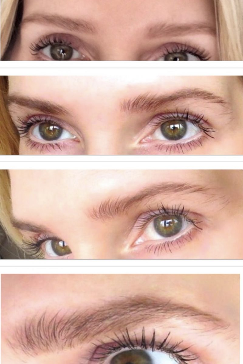 showing the brow growth before and after